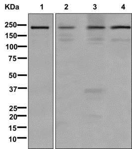 Western blot - Anti-Sbf1  antibody [EPR12566] (ab177146)