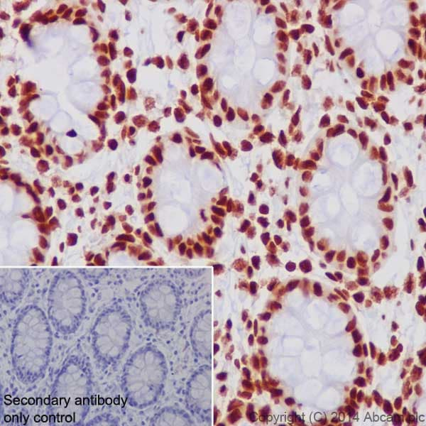 Immunohistochemistry (Formalin/PFA-fixed paraffin-embedded sections) - Anti-Histone H3 (acetyl K27) antibody [EP16602] - ChIP Grade (ab177178)