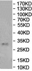 Western blot - Anti-METTL8 antibody (ab177201)