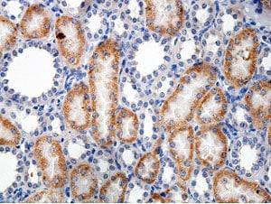 Immunohistochemistry (Formalin/PFA-fixed paraffin-embedded sections) - Anti-FARSLB antibody (ab177202)