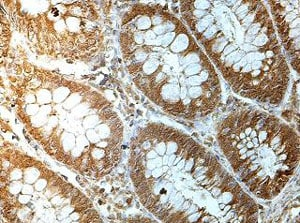 Immunohistochemistry (Formalin/PFA-fixed paraffin-embedded sections) - Anti-MKS1 antibody (ab177207)