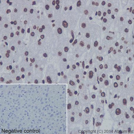 Immunohistochemistry (Formalin/PFA-fixed paraffin-embedded sections) - Anti-Histone H3 (mono methyl R17) antibody [EPR17247] (ab177222)