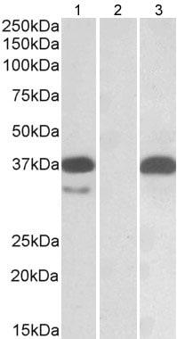 Western blot - Anti-PIM2 antibody (ab177237)