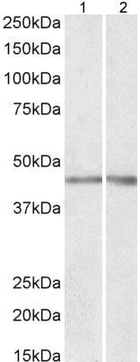 Western blot - Anti-NPHS2 antibody (ab177242)
