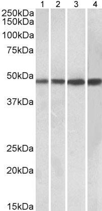 Western blot - Anti-BEN Domain Containing Protein 5 antibody (ab177244)