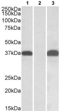 Western blot - Anti-PIM2 antibody (ab177247)