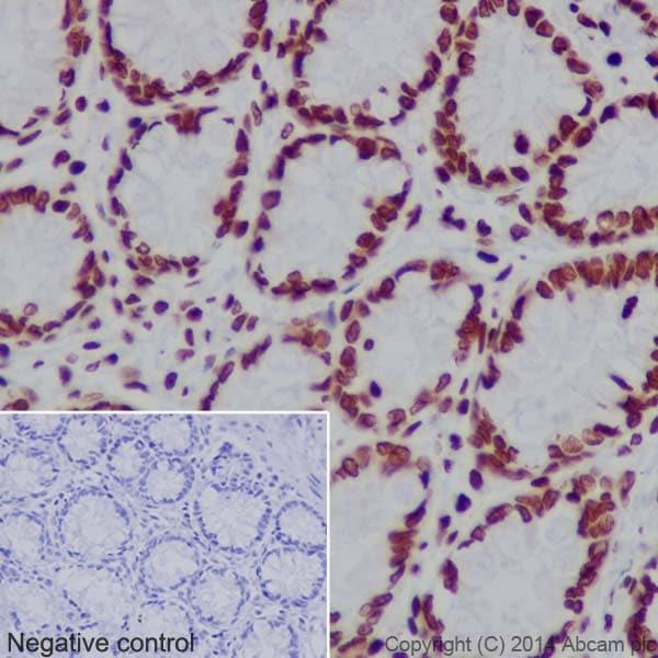 Immunohistochemistry (Formalin/PFA-fixed paraffin-embedded sections) - Anti-Histone H3 (mono methyl K18) antibody [EPR17710] (ab177253)