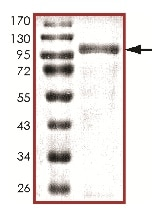 SDS-PAGE - Recombinant human NKF3 kinase family member/PEAK1 protein (ab177257)