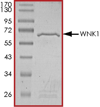 SDS-PAGE - Recombinant human WNK1 protein (Tagged) (ab177262)