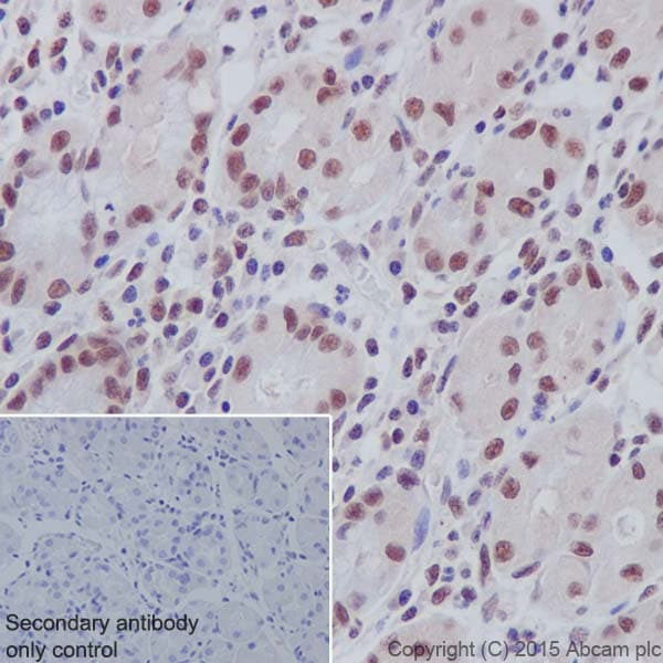 Immunohistochemistry (Formalin/PFA-fixed paraffin-embedded sections) - Anti-Histone H3 (symmetric di methyl R26) antibody [EPR17719] (ab177284)