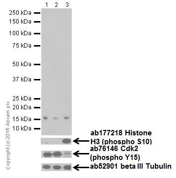 Western blot - Anti-Histone H3 (mono methyl K122) antibody [EPR17897] (ab177300)