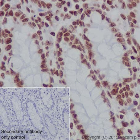 Immunohistochemistry (Formalin/PFA-fixed paraffin-embedded sections) - Anti-Histone H3 (formyl K122) antibody [EPR17896] (ab177306)