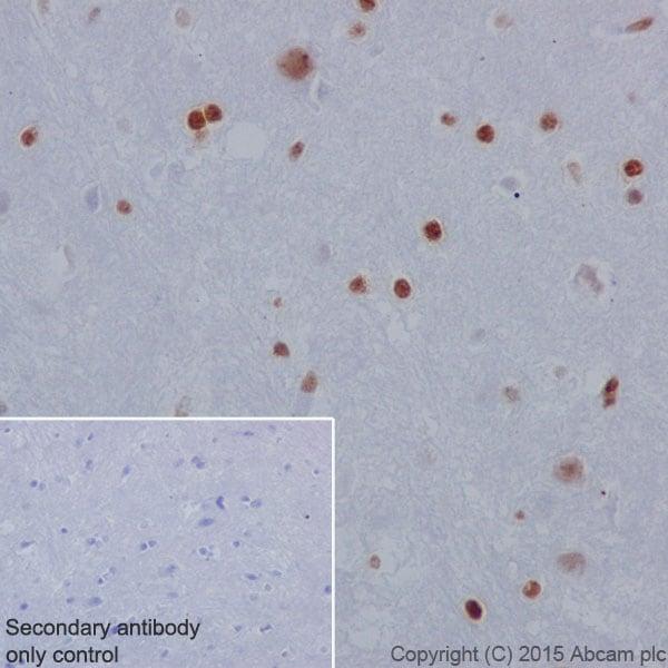 Immunohistochemistry (Formalin/PFA-fixed paraffin-embedded sections) - Anti-Histone H2A (phospho S1) + Histone H4 (phospho S1) antibody [EPR18184] (ab177309)
