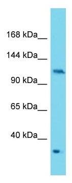 Western blot - Anti-PKN2 antibody - C-terminal (ab177322)