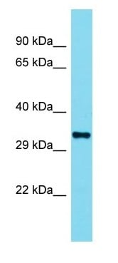Western blot - Anti-Olfr110 antibody - C-terminal (ab177327)