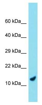 Western blot - Anti-C9orf116 antibody (ab177369)