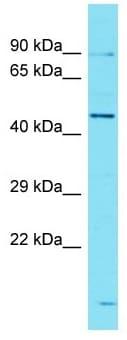 Western blot - Anti-ANKRD40 antibody - C-terminal (ab177378)