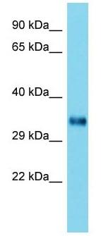 Western blot - Anti-HOMER2 antibody - C-terminal (ab177383)