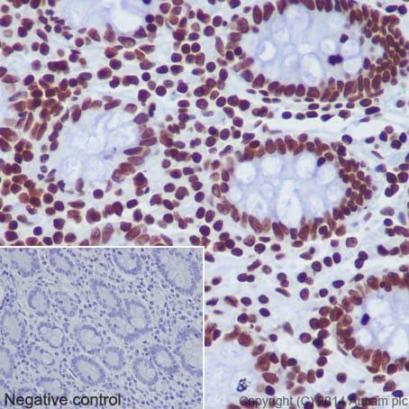 Immunohistochemistry (Formalin/PFA-fixed paraffin-embedded sections) - Anti-Histone H2A (mono methyl K118) antibody [EPR17488] (ab177387)