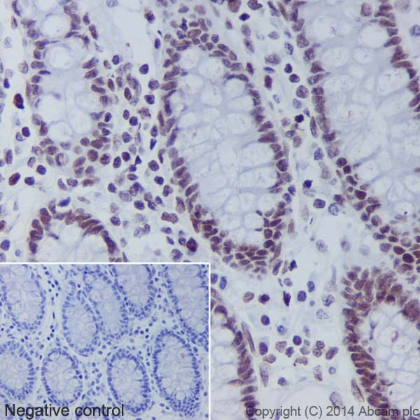 Immunohistochemistry (Formalin/PFA-fixed paraffin-embedded sections) - Anti-Histone H2B (crotonyl K5) antibody [EPR17483] (ab177396)