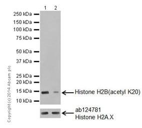 Western blot - Anti-Histone H2B (acetyl K20) antibody [EPR859] - ChIP Grade (ab177430)
