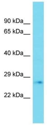 Western blot - Anti-PLD6 antibody - C-terminal (ab177449)