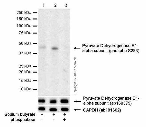 Western blot - Anti-Pyruvate Dehydrogenase E1-alpha subunit (phospho S293) antibody [EPR12200] (ab177461)