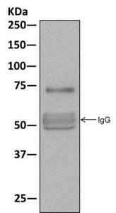 Immunoprecipitation - Anti-TRP1 antibody [EPR13064(B)] - C-terminal (ab177468)