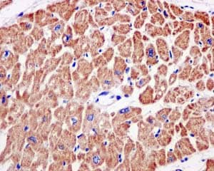 Immunohistochemistry (Formalin/PFA-fixed paraffin-embedded sections) - Anti-NDUFS3 antibody [EPR12782] - C-terminal (ab177471)