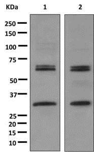 Western blot - Anti-Caspase-10/CASP-10 antibody [EPR10890] (ab177475)
