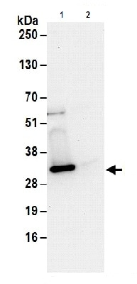 Immunoprecipitation - Anti-UBE2S antibody (ab177508)