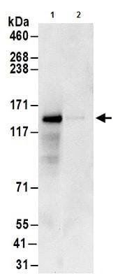 Immunoprecipitation - Anti-GIGYF1 antibody (ab177509)