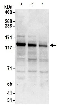 Western blot - Anti-GIGYF1 antibody (ab177509)