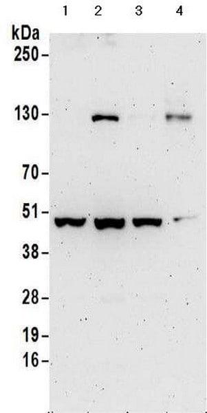 Western blot - Anti-KPC2 antibody - C-terminal (ab177519)