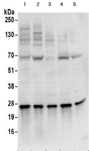 Western blot - Anti-HIP2/LIG antibody - C-terminal (ab177521)