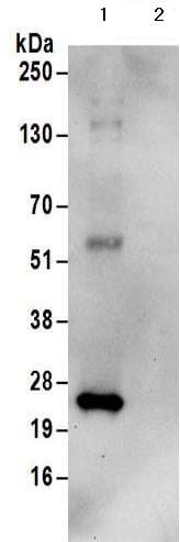 Immunoprecipitation - Anti-HIP2/LIG antibody - C-terminal (ab177521)