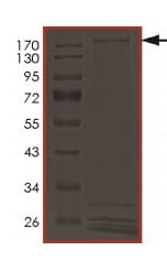 SDS-PAGE - Recombinant human LRRK2 (mutated D1994 A) protein (ab177570)