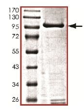 SDS-PAGE - Recombinant human IKK beta protein (Active) (ab177584)