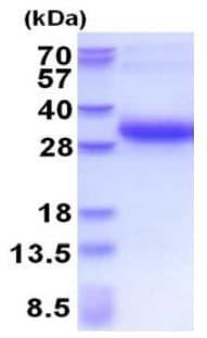 SDS-PAGE - Recombinant Human DSU protein (His tag) (ab177607)