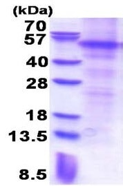 SDS-PAGE - Recombinant Human Parkin protein (denatured) (ab177625)
