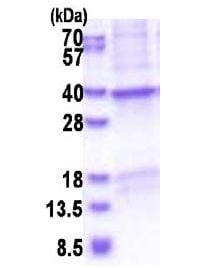 SDS-PAGE - Recombinant Human CRHBP protein (denatured) (ab177629)