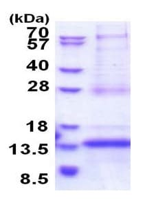 SDS-PAGE - Recombinant Human CDKN2AIPNL protein (ab177647)