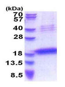 SDS-PAGE - Recombinant Human LECT1 protein (denatured) (ab177651)