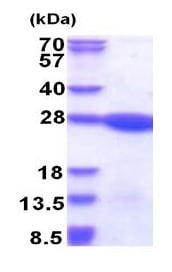 SDS-PAGE - Recombinant Human LZIC protein (ab177652)