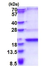 SDS-PAGE - Recombinant Human C20orf79 protein (ab177727)
