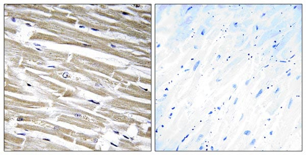 Immunohistochemistry (Formalin/PFA-fixed paraffin-embedded sections) - Anti-B3GALT2 antibody (ab177736)