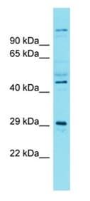 Western blot - Anti-SIAH3 antibody - N-terminal (ab177739)