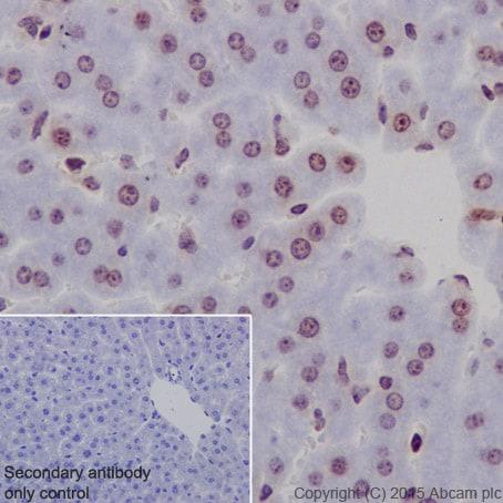 Immunohistochemistry (Formalin/PFA-fixed paraffin-embedded sections) - Anti-Histone H2B (formyl K108) antibody [EPR17697] (ab177784)