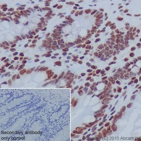 Immunohistochemistry (Formalin/PFA-fixed paraffin-embedded sections) - Anti-Histone H2B (formyl K120) antibody [EPR17701] (ab177788)
