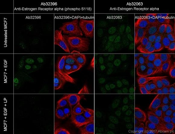 Immunocytochemistry/ Immunofluorescence - Anti-Estrogen Receptor alpha (phospho S118) antibody [E91] - BSA and Azide free (ab177817)